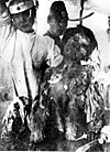 Victim_of_atomic_bomb_of_nagasaki_0